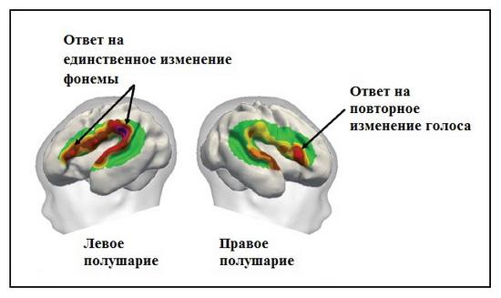 Реакция мозга на речь